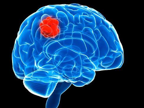 Wanita Ini Kena Serangan Panik, Rupanya Tanda Dirinya Idap Tumor Otak